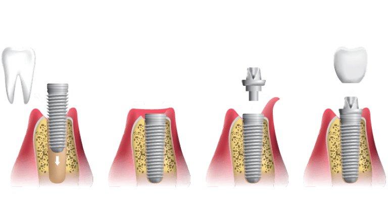 خطوات إجراء عملية زراعة الأسنان