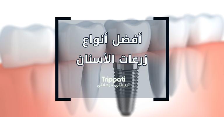 أنواع زرعات الأسنان